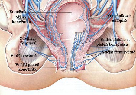 Vnitřní hemeroidy konečník