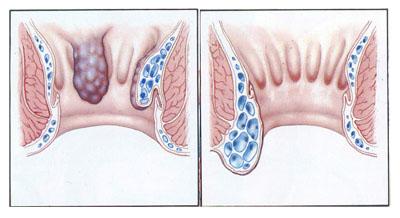 Vnitřní hemeroidy
